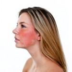 Allergiehuid